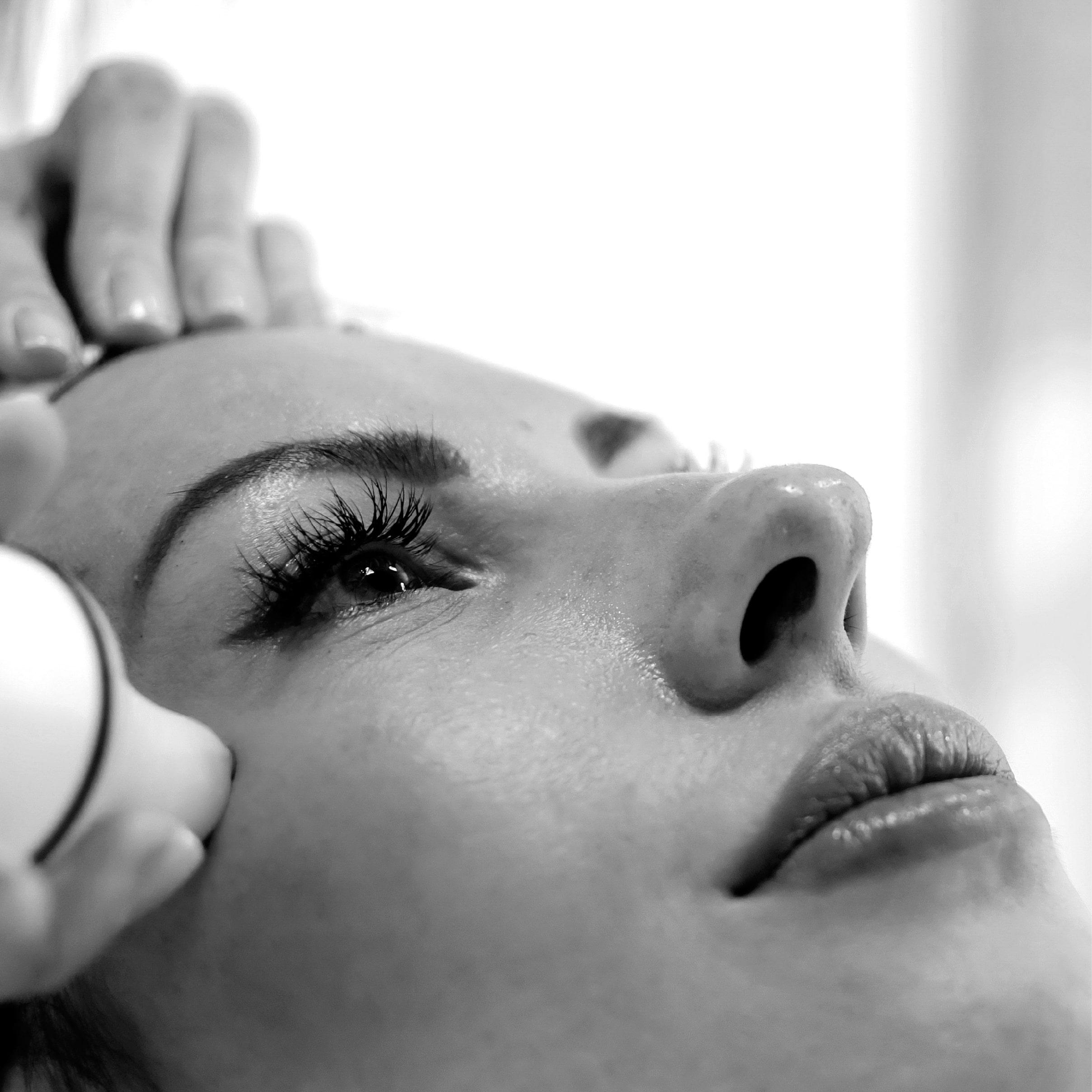 Carbossiterapia del viso