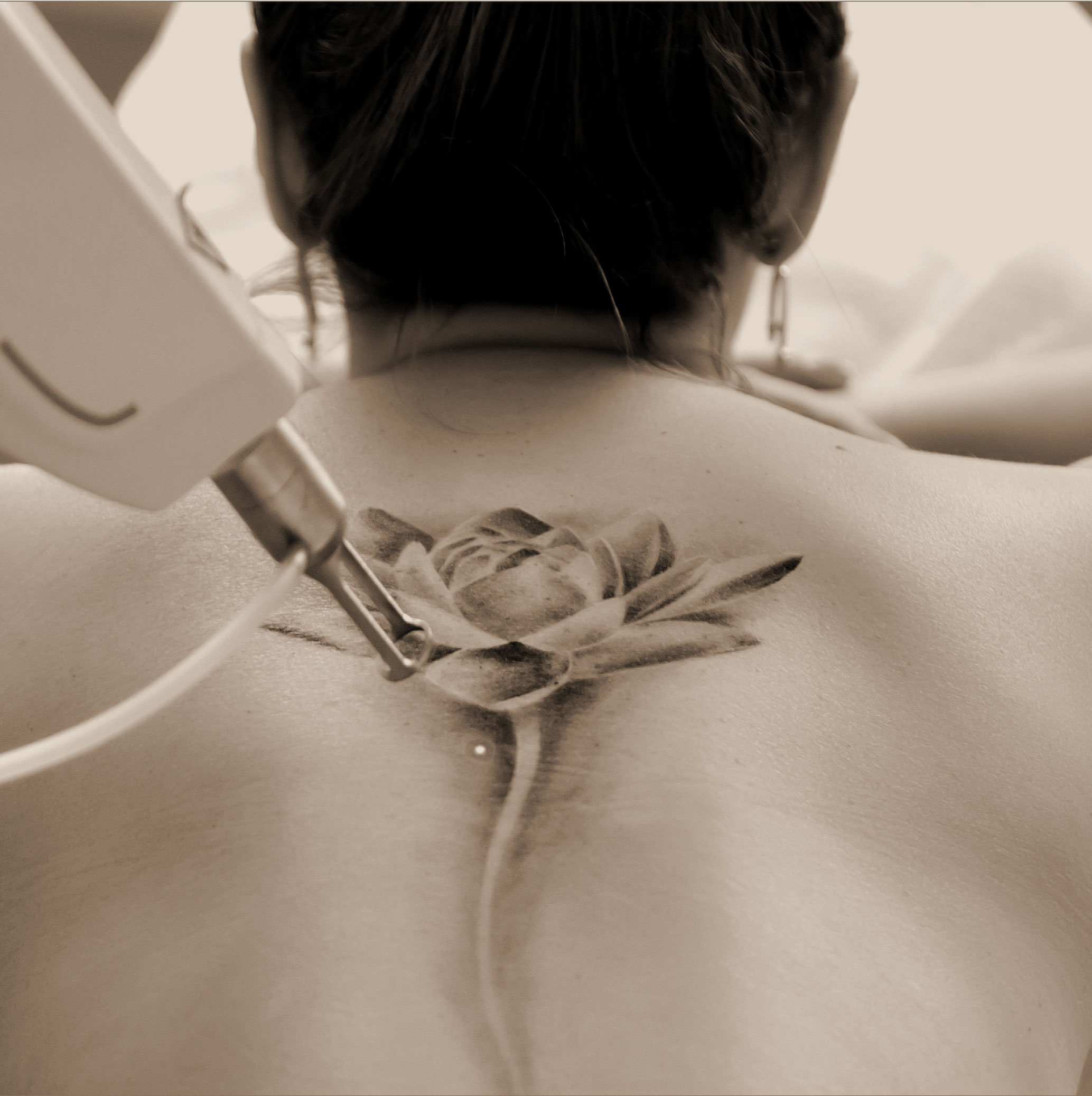 Doctor Charme effettua la rimozione dei tatuaggi con il trattamento Pico Laser Enlighten