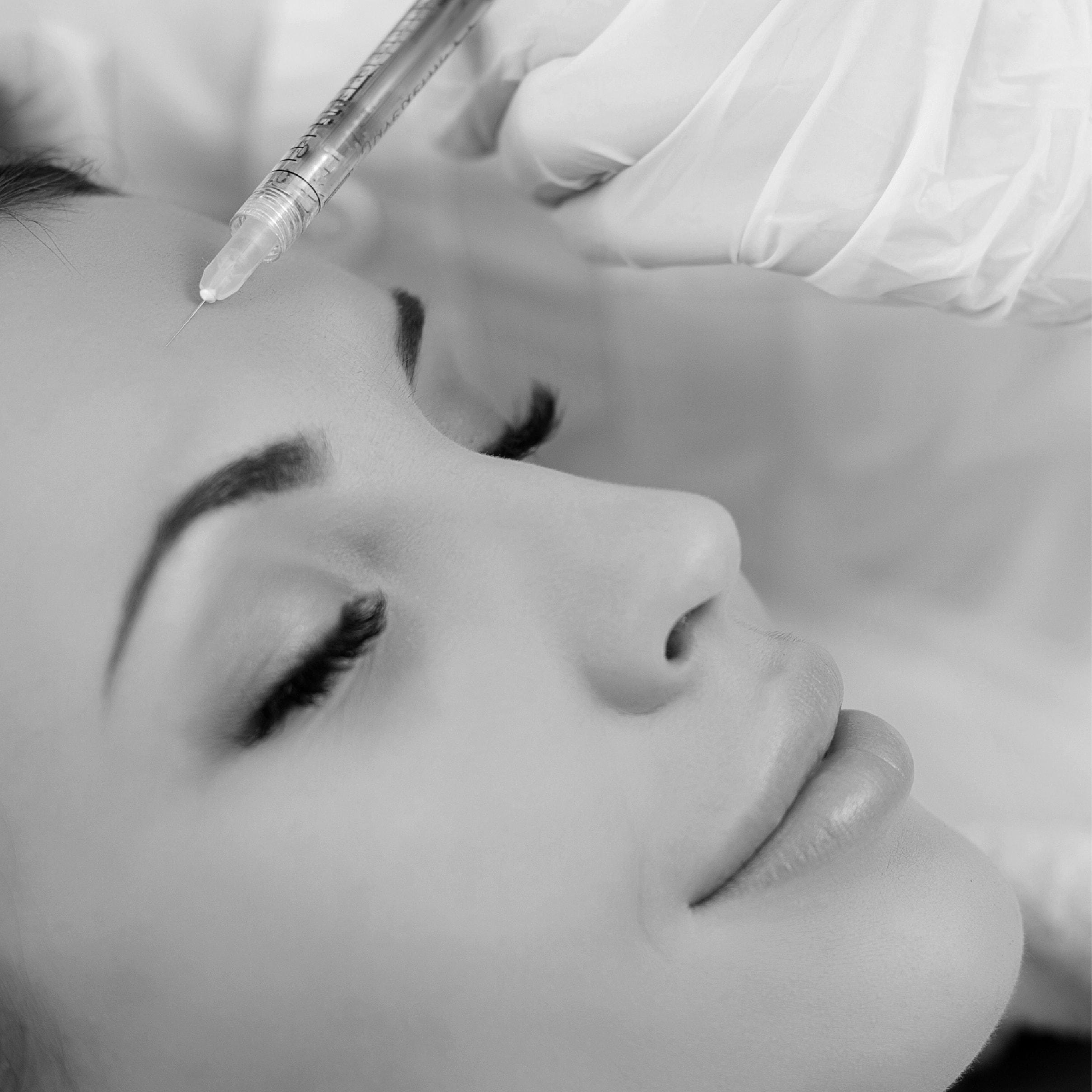 Medicina estetica del viso, la tossina botulinica
