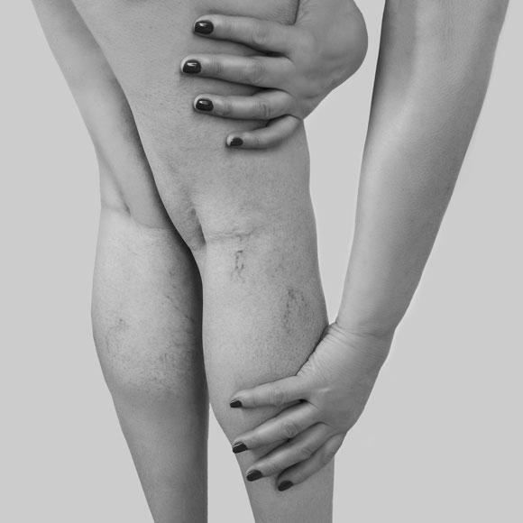 Scleroterapia delle vene capillari