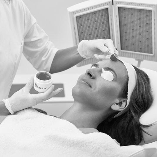 Doctor Charme effettua il trattamento Laser couperose con Kleresca