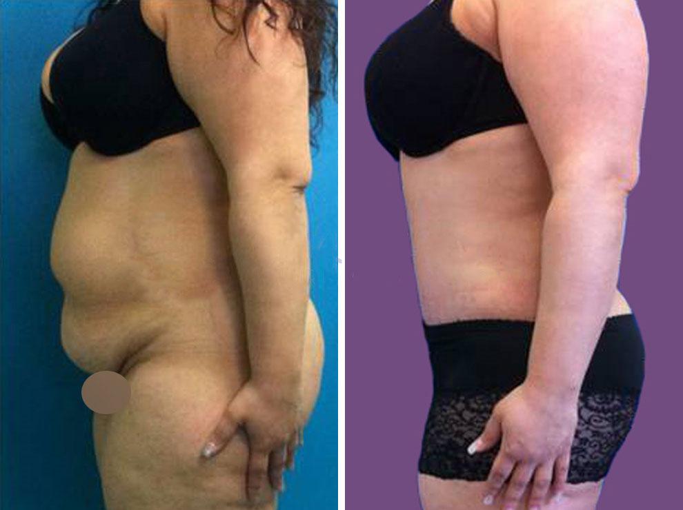 Doctor Charme esegue interventi di chirurgia estetica per l'eliminazione della pelle in eccesso.