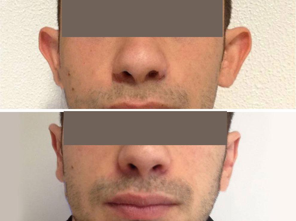 otoplastica - chirurgia estetica viso