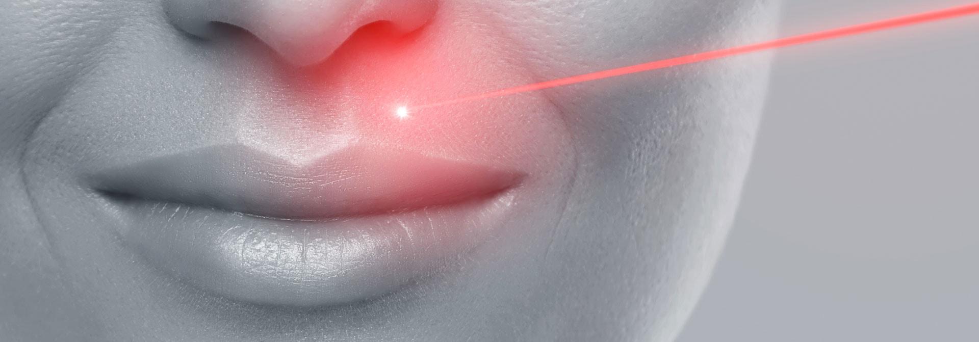 Trattamenti Laser per il ringiovanimento di Doctor Charme.
